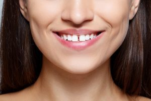 Dental Gaps 2 Ways To Close Them