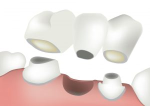 dentalbridge