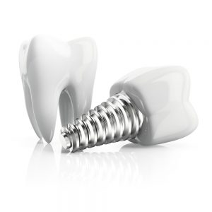 dentalimplantandtooth