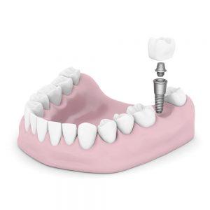 dentalimplantparts