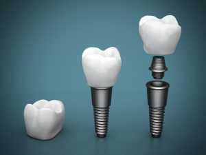 dentalimplantpiecebypiece