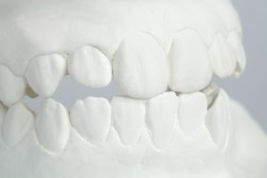 tips to stop grinding teeth